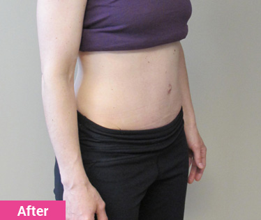 Diastasis Rectus Abdominis: Wall Contraction After